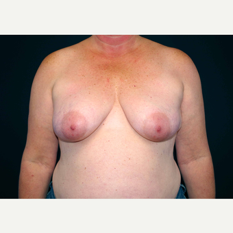 45-54 year old woman treated with Breast Implants before 3441245