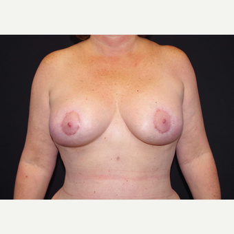 45-54 year old woman treated with Breast Implants after 3441245