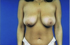 Mastopexy (breastlift) front view before 83399