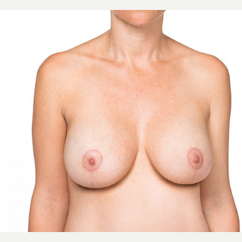 Breast Implants after 3294410