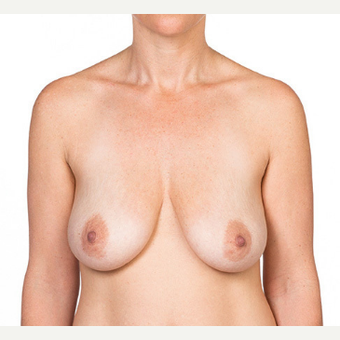 Breast Implants before 3294410