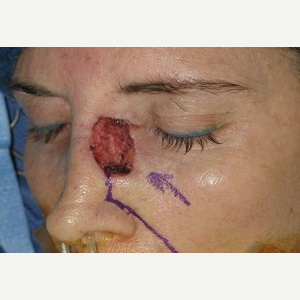 35-44 year old woman treated with Mohs Surgery before 3389216