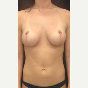 18-24 year old woman treated with Breast Lift after 1975164