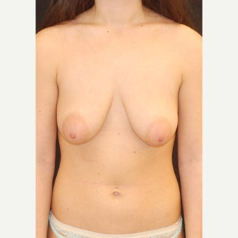 18-24 year old woman treated with Breast Lift before 1975164