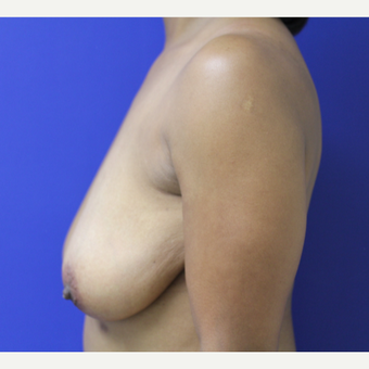 45-54 year old woman treated with Breast Lift before 3653252