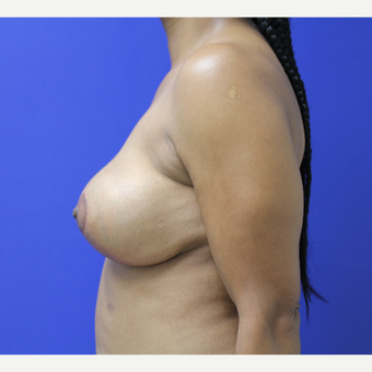 45-54 year old woman treated with Breast Lift after 3653252