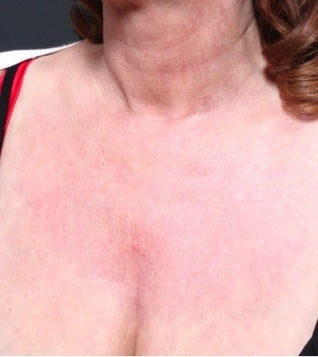 52 year old woman who underwent décolletage (cleavage) rejuvenation after 1100628