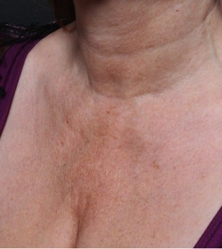 52 year old woman who underwent décolletage (cleavage) rejuvenation before 1100628
