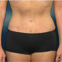 52 year old woman treated with Tummy Tuck after 3578244