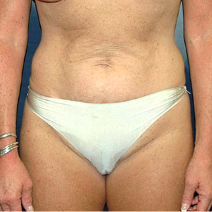 52 year old woman treated with Tummy Tuck before 3578244