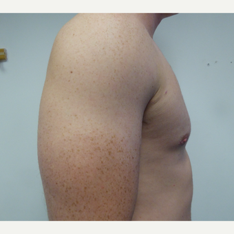 18-24 year old man treated with Male Breast Reduction after 3428615