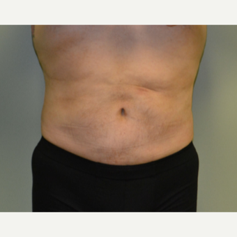 45-54 year old man treated with Vaser Liposuction after 2993459