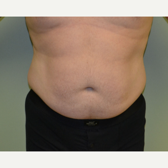 45-54 year old man treated with Vaser Liposuction before 2993459
