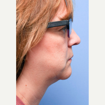 45-54 year old woman treated with CoolSculpting for neck and chin after 2995341
