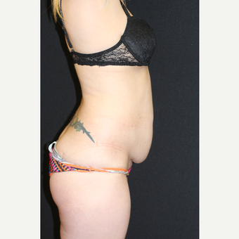 37 year old woman treated with Mini Tummy Tuck before 3076633