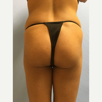 25-34 year old woman treated with Smart Lipo before 3437253