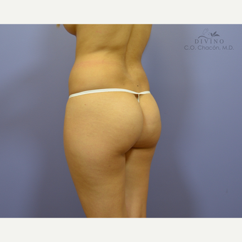 18-24 year old woman treated with Butt Implants before 3391331