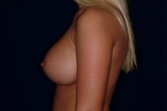 Breast Augmentation 336316