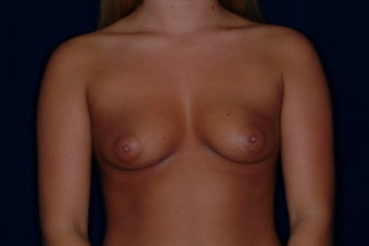 Breast Augmentation before 336316