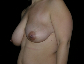 Breast Reduction 143577