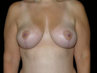 Breast Reduction after 143577