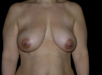 Breast Reduction before 143577