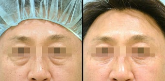 Lower Eyelid(Blepharoplasty) Surgery before 656865