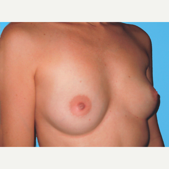 Breast Augmentation before 3732740