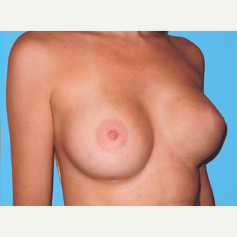 Breast Augmentation after 3732740