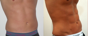 25-34 year old woman treated with Vaser Liposuction before 4599307