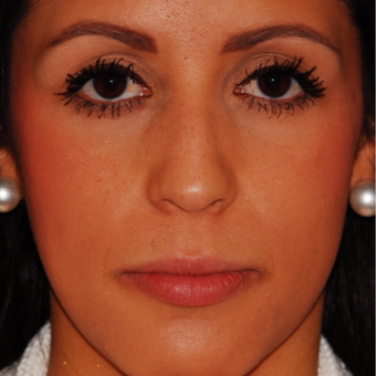 25-34 year old woman treated with Rhinoplasty before 3624294