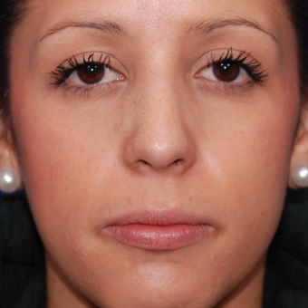 25-34 year old woman treated with Rhinoplasty after 3624294