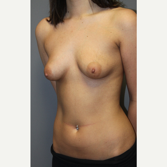 18-24 year old woman treated with Breast Lift with Implants before 3129158
