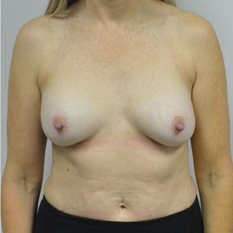 45-54 year old woman treated with Nipple reduction Surgery