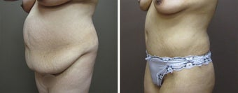 25-34 year old woman treated with Tummy Tuck before 3226502