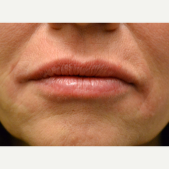 Lip Augmentation Using 1 syringe of Belotero after 2881956