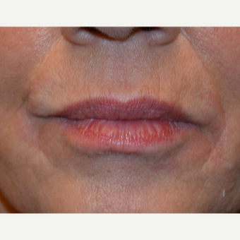 Lip Augmentation Using 1 syringe of Belotero before 2881956