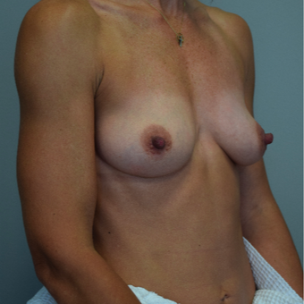 35-44 year old woman treated with Breast Implants before 3540699