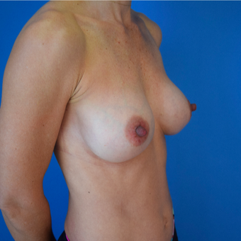 35-44 year old woman treated with Breast Implants after 3540699