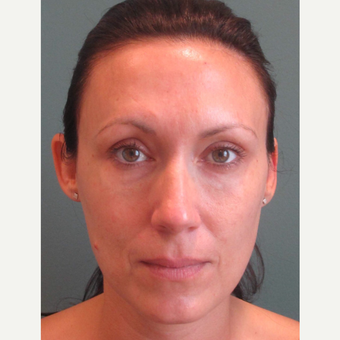 35-44 year old woman treated with Restylane to the lower eyes after 3713684