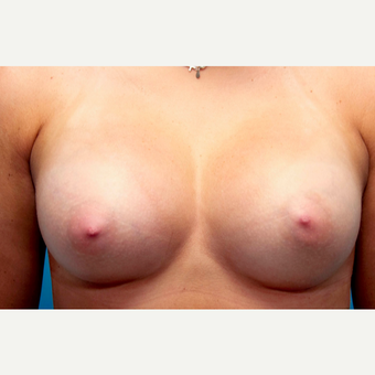 23 year old woman treated with Breast Augmentation after 3089751