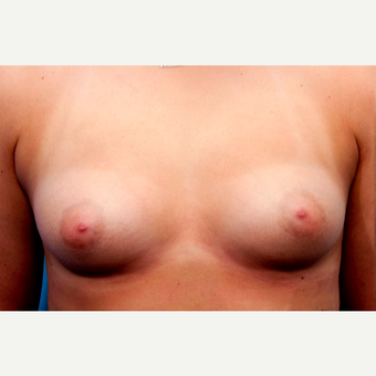 23 year old woman treated with Breast Augmentation before 3089751
