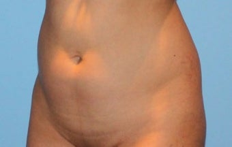 Liposuction 1767755