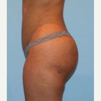 Liposuction after 1767755