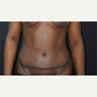 55-64 year old woman treated with Tummy Tuck after 1860364
