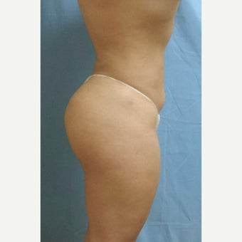 Brazilian Butt Lift after 2339713