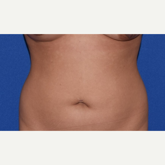 18-24 year old woman treated with Liposuction before 3069439