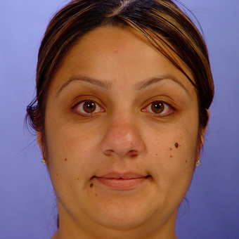 25-34 year old woman treated with Rhinoplasty before 3570272