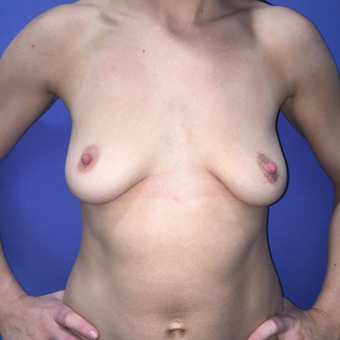 25-34 year old woman treated with Breast Augmentation before 3415710
