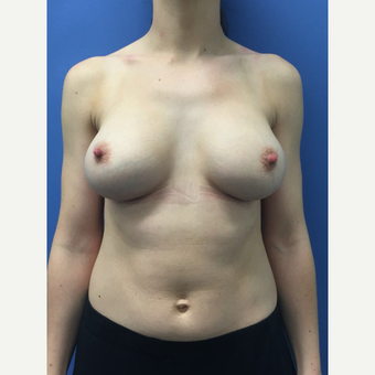 25-34 year old woman treated with Breast Augmentation after 3415710